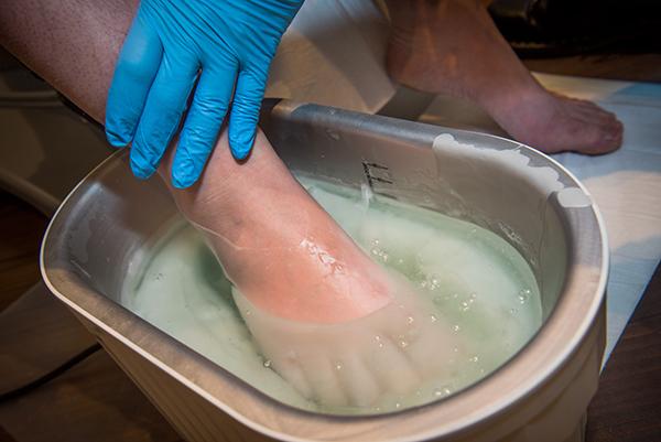 paraffin-wax-bath-therapy